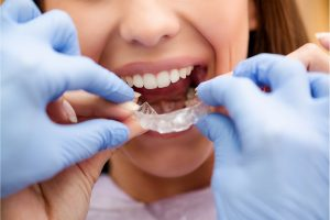 Best Orthodontic Clinic in Mississauga